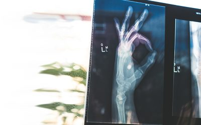 The unsolved mystery of type 2 diabetes and bone fragility